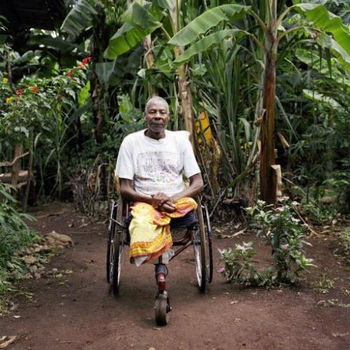 Disability and amputation in Tanzania